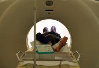 Règles et astuces pour diminuer la dose au scanner