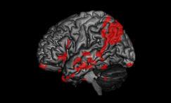 Les apports de l'IRM fonctionnelle dans l'imagerie des troubles de la conscience