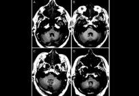 Tous les agents de contraste à base de gadolinium ne restent pas dans le cerveau