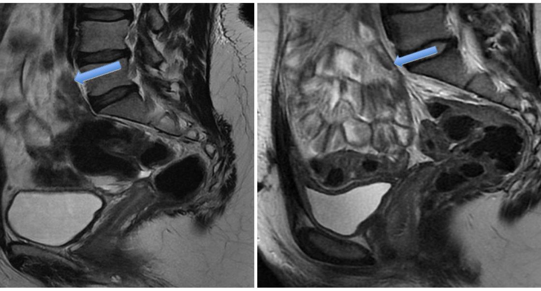 Le pelvis féminin à 1,5 T et 3 T - Docteur imago