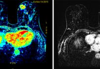 L'IRM de dépistage pour les femmes à haut risque