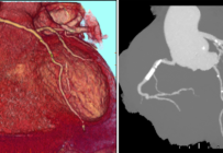 Les indications et les techniques du scanner cardiaque
