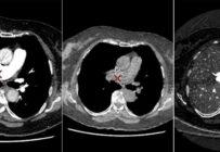 L'imagerie spectrale incontournable pour les pathologies thoraciques