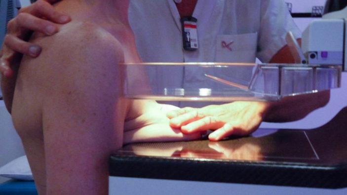 L'IRSN ne relève pas d'infériorité des systèmes Konica-Minolta en imagerie mammaire
