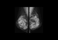 Le dépistage organisé du cancer du sein évolue