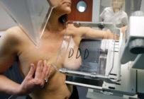 Optimiser la détection du cancer du sein en période de capacité réduite