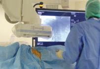 L'activité et le mental des radiologues interventionnels en berne pendant la Covid-19