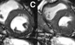 La place de l'IRM cardiaque après un infarctus du myocarde