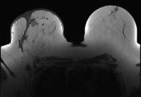Le bon usage de l'IRM préthérapeutique du cancer du sein