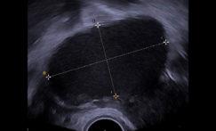 Les nouvelles recommandations relatives à la prise en charge de l'endométriose