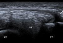 Échographie du ligament antérolatéral du genou : comment et pourquoi ?