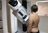 Les recommandations pour la reprise du dépistage du cancer du sein après le confinement