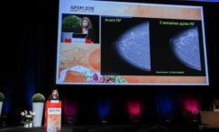 Tour d'horizon des techniques percutanées pour le traitement du cancer du sein