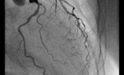 Le taux de recours à la coronarographie varie du simple au triple selon les départements