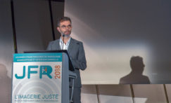 Comment la télé-expertise a intégré la thrombectomie en Bretagne