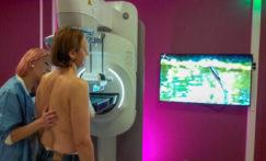 L'autocompression mammaire, un nouveau visage de la mammographie