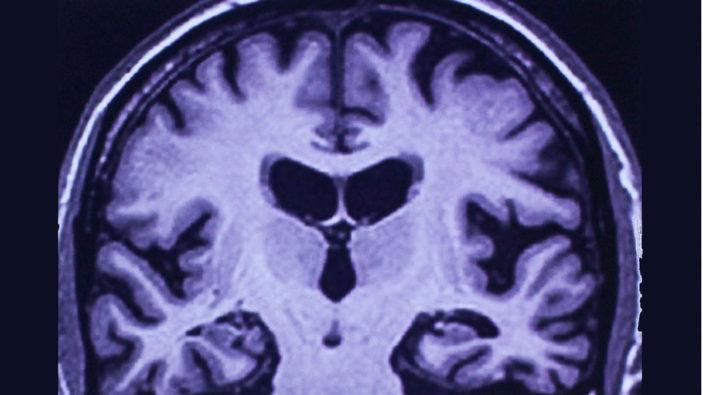 Quels outils diagnostiques pour la maladie d'Alzheimer ?