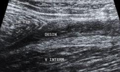 Démembrement et intérêt de l'échographie des lésions musculaires: anatomie et topographie