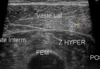 Démembrement et intérêt de l'échographie des lésions musculaires: classification et surveillance échographique