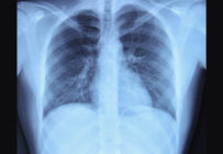 Que dit la loi sur les délais d'archivage des images médicales ?