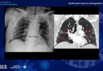 Quel rôle pour la radiographie dans la prise en charge des patients Covid ?