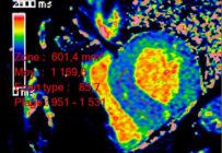 L'imagerie de l'amylose cardiaque