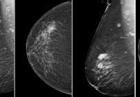 Le rôle de la tomosynthèse dans le diagnostic du cancer du sein