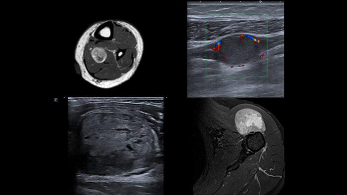 Tumeur des parties molles : les radiologues proposent un «chemin patient» guidé par l'imagerie disponible en ligne