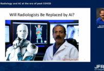 Comment l'intelligence artificielle pourrait répondre à la pandémie en radiologie