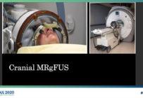 Pleins feux sur les ultrasons focalisés