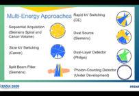 Les principes du scanner double énergie expliqués au congrès de la RSNA