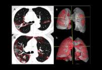 Un logiciel de radio-oncologie pour déterminer le risque de décès à l'hôpital dû au Covid-19