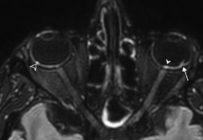 Une étude décrit pour la première fois les atteintes ophtalmologiques de la COVID à l'IRM