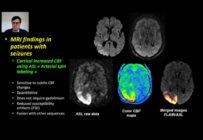 Quelle imagerie pour une première crise épileptique chez les adultes ?