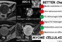 The BETTER Check : une anagramme pour mieux différencier le léiomyosarcome du léiomyome atypique