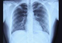 L'IA va-t-elle réinventer la radiographie thoracique?