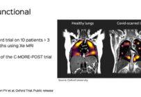 Quelle place pour l'IRM dans la prise en charge des patients COVID ?