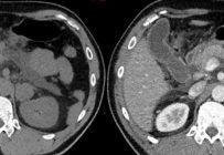 Phéochromocytomes et paragangliomes : quelle imagerie et quel suivi ?