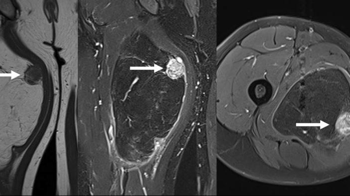 L'imagerie des sarcomes des tissus mous des extrémités