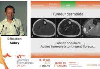 Les étapes et les modalités de la stratégie diagnostique face à une masse musculaire